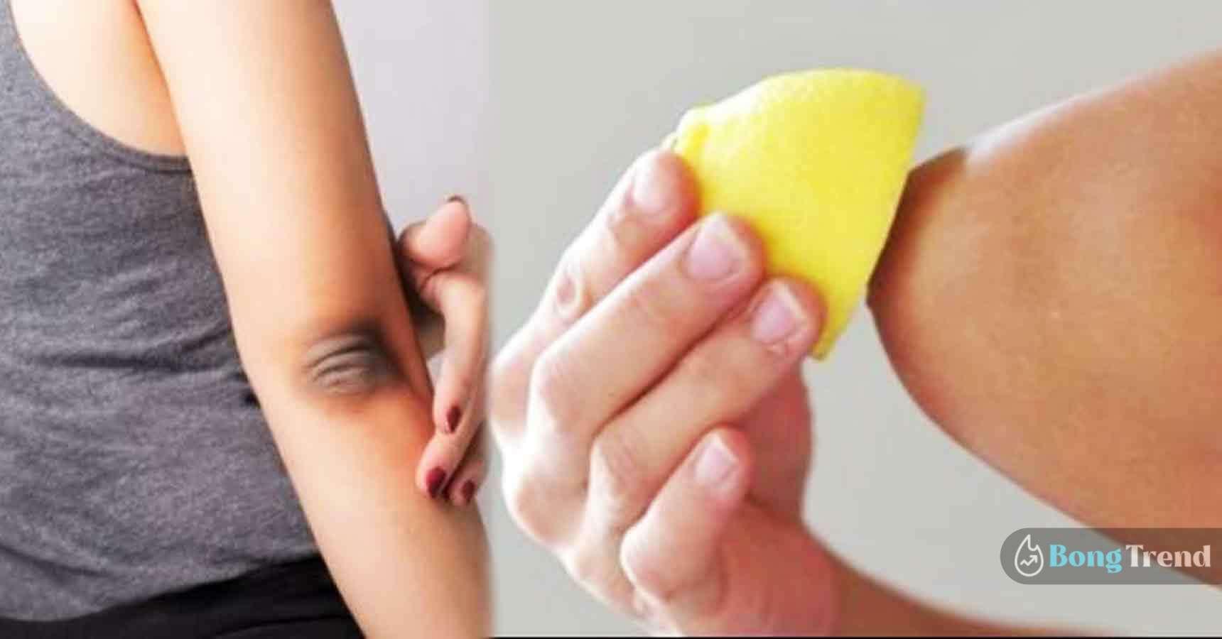 কনুই ও হাঁটুর কালচে দাগ দূর করার উপায় Remove dark spots of elbow and knee